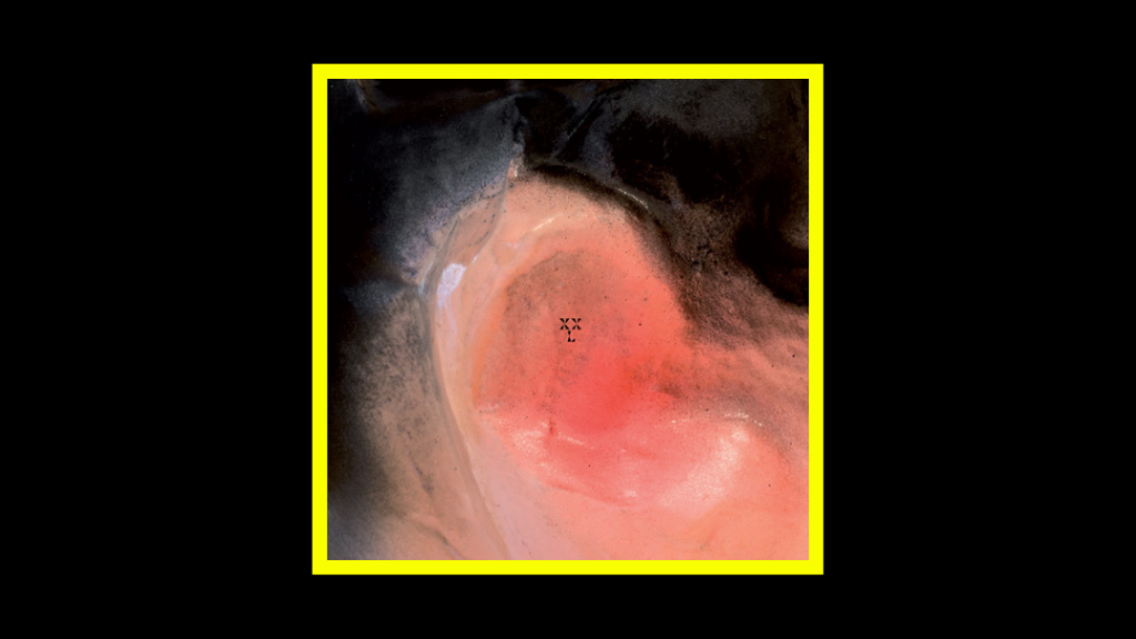 XXL - Puff O'Gigio Radioaktiv